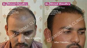 Hair Transplant In Pakistan Photo Gallery Before And