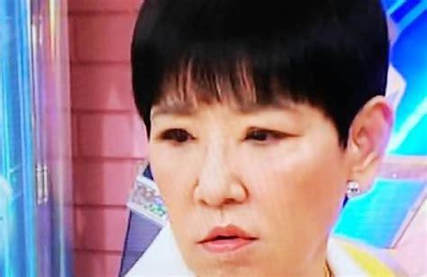 和田アキ子 目 手術