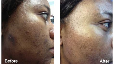 Acne Scars Removal - Before and After | Skin Perfect
