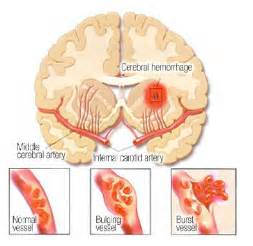 Intracranial Hemorrhage Stroke Types