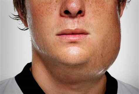 Not immunised may cause pupils to contract mumps | Astro Awani