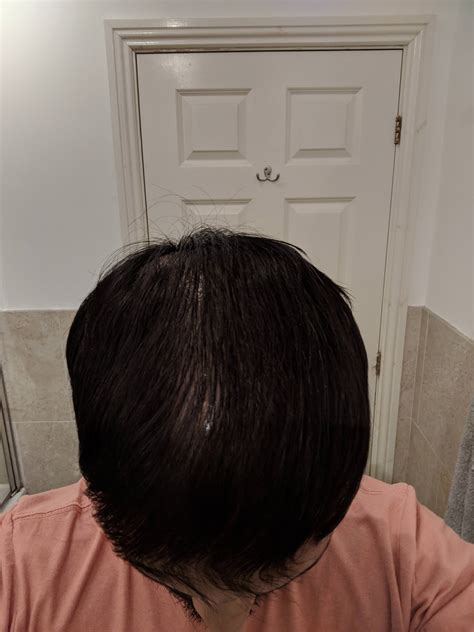 8+ years on Fin. Diffuse thinner. Starting to add min and