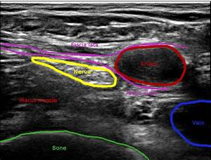 Ultrasound Image Of The Femoral Nerve With Manual