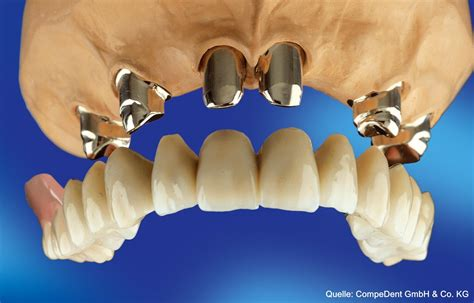 teilprothesen zahnarztpraxis dr nikolaus