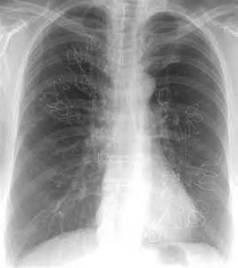 Lung On X-ray Emphysema