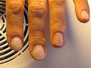 По какой причине может появиться грибок ногтей