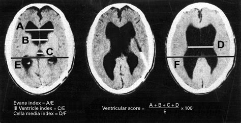 Cognitive Changes After Cerebrospinal Fluid Shunting In Young Adults With Spina Bifida And