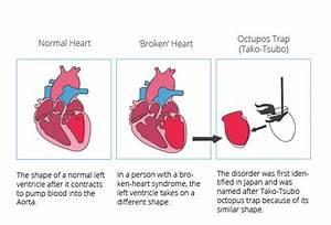 Heart condition... Broken Heart Syndrome