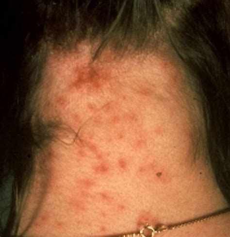 Lice bites: Pictures, identification, and treatment