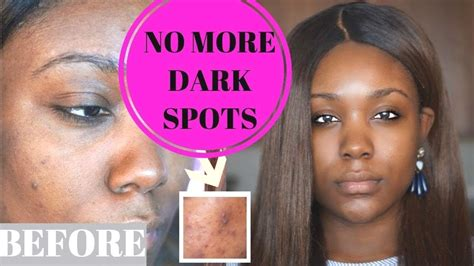 how to remove spots on clear skin on a budget acne scars skin care