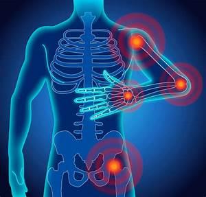 Welche lebensmittel bei arthrose