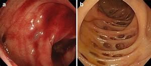 A Colonic Diverticular Bleeding  B Colonic Diverticulum