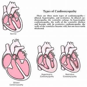Cardiomyopathy Types