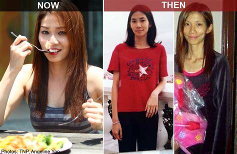world singapore finalist  battling anorexia