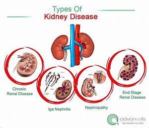 Types Of Kidney Disease  Chronic Renal Disease  Iga
