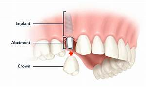 Guide To Dental Implant Cost