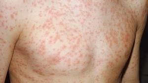 3 day measles rash