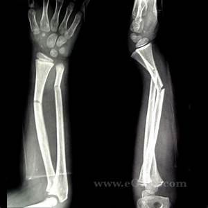 Icd 9 Code For Foot Pediatric Forearm Fracture S52 209a 813 23 Eorif
