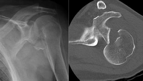 The Radiology Assistant : Shoulder MR - Instability