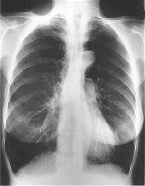 Diagnosis of COPD