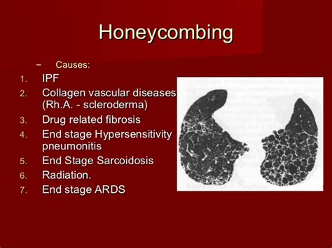 hrct  diagnosis  diffuse lung diseases