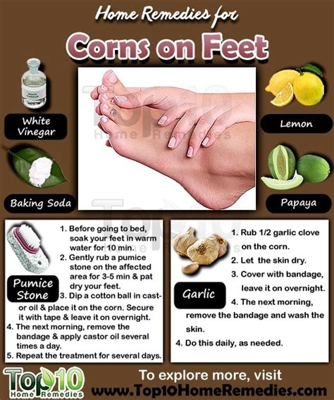 home remedies  corns  feet top  home remedies