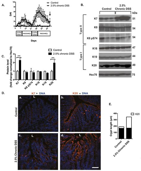 Cells Free Full Text Keratins Are Altered In