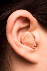 Hearing Loss Claims Pictures