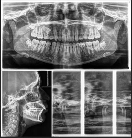 2d imaging panoramic radiograph sectional ray tmj