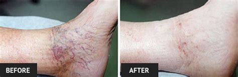 led red light therapy spider veins red light therapy for spider veins iron blog