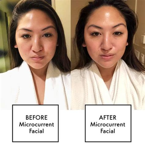 Everything You Need to Know About Microcurrent Facials