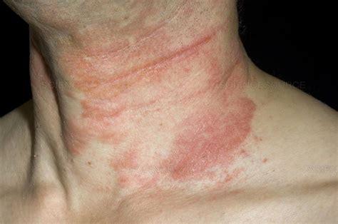 Science Source Eczema Rash On The Neck