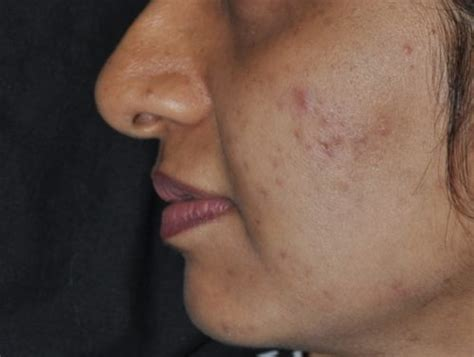 post inflammatory hyperpigmentation miami dermatology