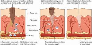 This Diagram Shows The Wound Healing Process In Three Steps  Each Step Shows A Cross Section Of