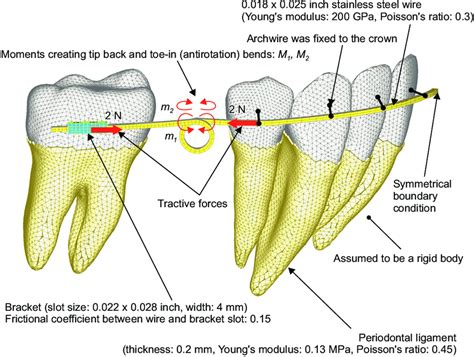Tooth Movement Diagram by Finite Element Model For Simulating Orthodontic Tooth