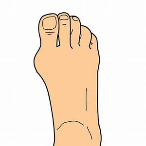 Location Of Foot Pain  U2190 Tendonitis Of Foot