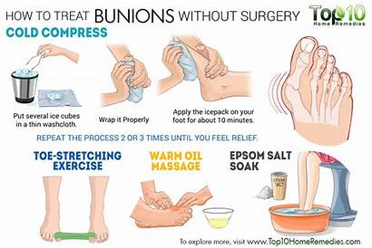 Bunions Surgery Without Treat Treatment Hallux Bunion