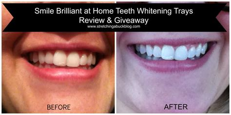 Smile Brilliant At Home Teeth Whitening Trays Review + Prize Pack Giveaway #spon Diy Directv Move Birthday Cards For Your Best Friend Wooden Business Card Holder Diya Decoration Ideas In Hindi Elastic Couch Cushion Covers Easy Concrete Projects How To Make Fake Ice Cream Lounge Chair Wood