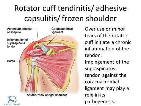Rotator Cuff Vs Frozen Shoulder » How To Relief