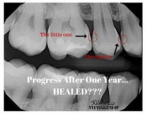 Reversing Cavities is Truly Possible! Teeth can Heal!