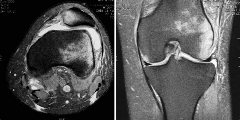 1 Typical Mri Aspect After Acute Patella Dislocation