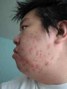 About Rosacea Page 300