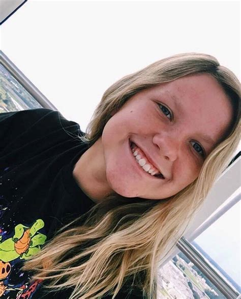 16 year-old-girl who was badly burned in a bonfire has ...