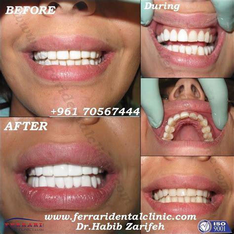 veneer cost hollywood smile lebanon blog and reviews veneers lumineers teeth whitening gummy smile