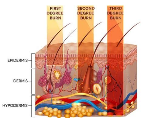 3 Types of Burn Injuries By Degree - Silver and Silver, P.A.