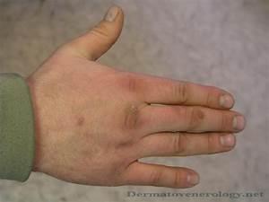 Лечение папиллом с полынью