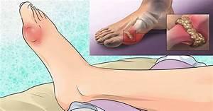 Артроз стоп при диабете лечение