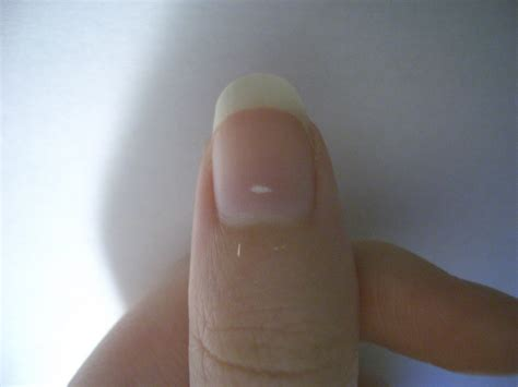 white spots on nail beds s aesthetics what is this white spot