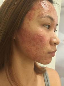My Battle With Acne  You Need To Read This   Part I