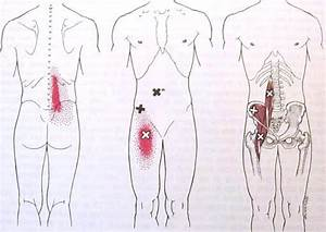 Iliopsoas Trigger Point Diagram